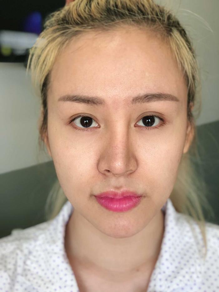 Mũi cô bị lệch vì biến chứng thẩm mỹ.