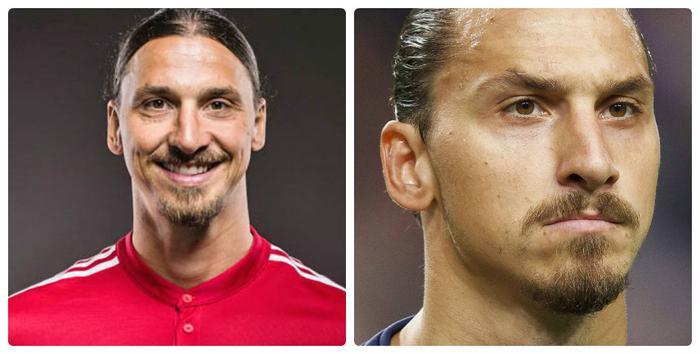 Trước đây Zlatan Ibrahimovic có chiếc mũi không thẳng, nhưng anh đã nhờ đến phẫu thuật thẩm mỹ để cải thiện chiếc mũi.