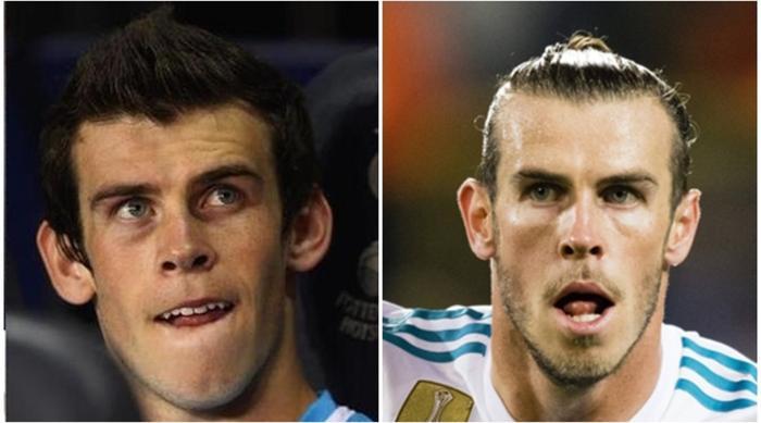 Gareth Bale trước đây sở hữu hàm răng nhọn và không đều, nhưng sau này anh đã thay đổi. Truyền thông đang nghi Bale chỉnh răng.