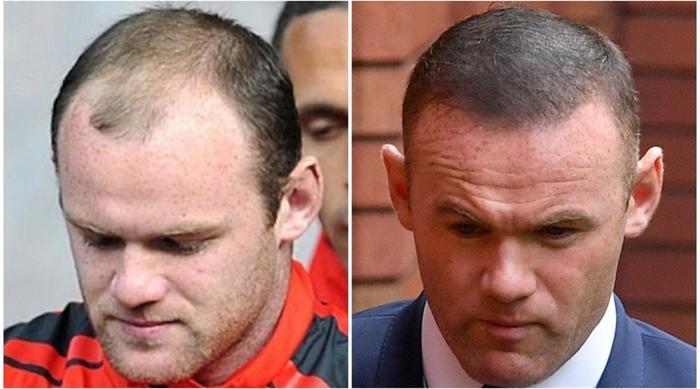 Wayne Rooney không giấu truyền thông việc mình trị hói bằng cách cấy tóc. Và sau khi cấy xong anh chàng đã bảnh bao ra hẳn so với lúc trước.