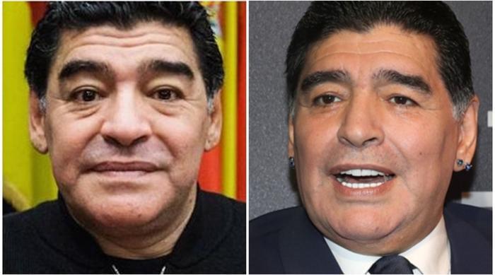Diego Maradona đã đi nâng cơ mặt, căng da để trẻ lại. Tháng 8/2016, ông đã bị cánh phóng viên bắt gặp khi rời khỏi một phòng phẫu thuật thẩm mỹ với khuôn mặt băng bó và bên cạnh là cô bồ 25 tuổi Rocio Oliva.