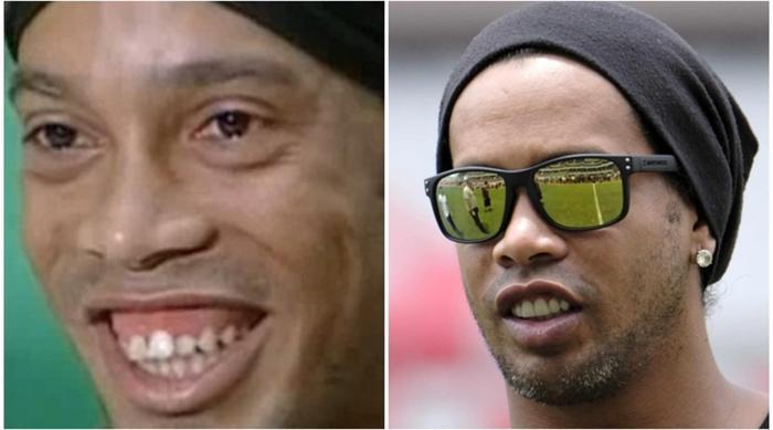 Với hàm răng không đều và hơi vẩu nên Ronaldinho đã niềng răng để trông bảnh trai hơn.