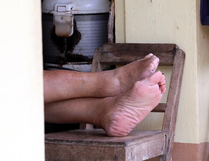 Những người bị bệnh phong họ khiếm khuyết đôi bàn chân, bàn tay, thậm chí là cả đôi mắt…