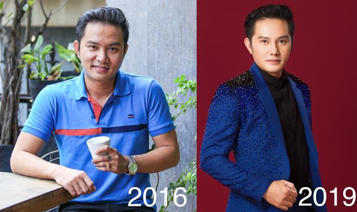 Thiên Bảo trước và sau phẫu thuật thẩm mỹ