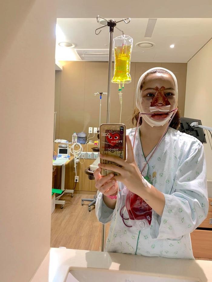 Khuôn mặt sưng vù của cô khi được nằm phòng hồi sức 1 đêm.Cô chia sẻ rằng mình không hề cảm thấy đau đớn hay khó chịu sau khi phẫu thuật xong.
