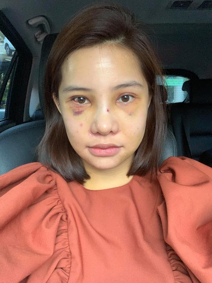 Sau 7 ngày phẫu thuật, cô về nhà dù mặt vẫn còn sưng và bị tụ máu vài chỗ.