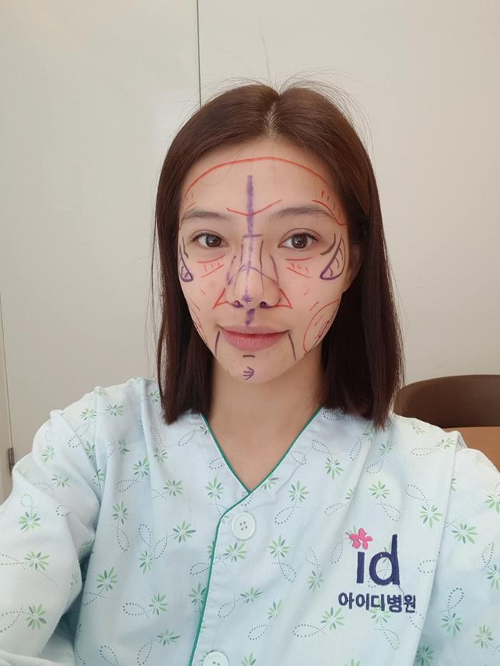Cô được các bác sĩ đánh dấu các phần cần chỉnh sửa trước khi phẫu thuật.