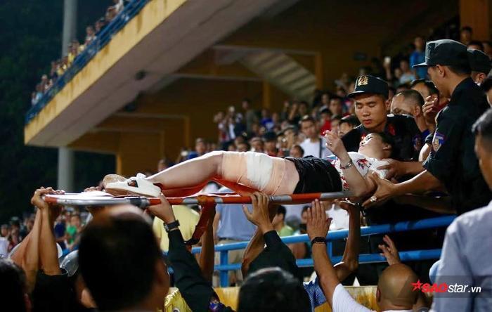 Nữ CĐV bị pháo bắn trúng. Một điều đáng tiếc khi CLB Hà Nội chủ quan, không làm đúng nội dung cuộc họp với VPF.