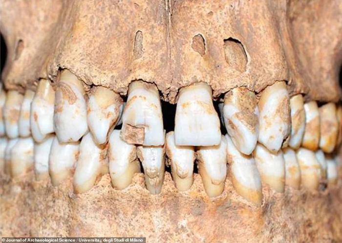 Hàm răng hô