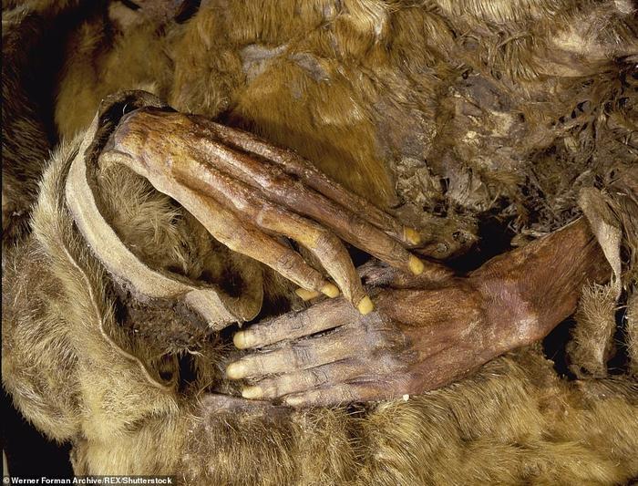 Bàn tay với da và móng hầu như còn vẹn nguyên của người phụ nữ.