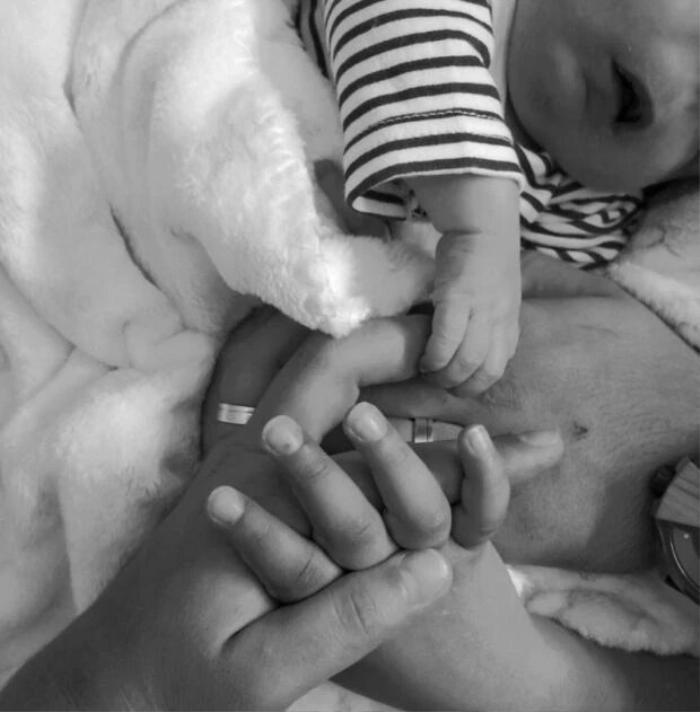 Bé trai sinh ra không có mắt mũi, thiếu một phần hộp sọ vì tắc trách của bác sĩ