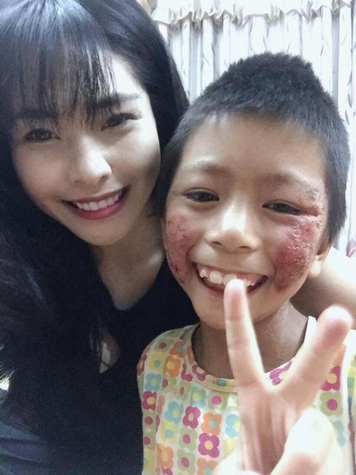 Những ngày đó Linh luôn bên cạnh lau rửa sát trùng vết thương cho cô bé.