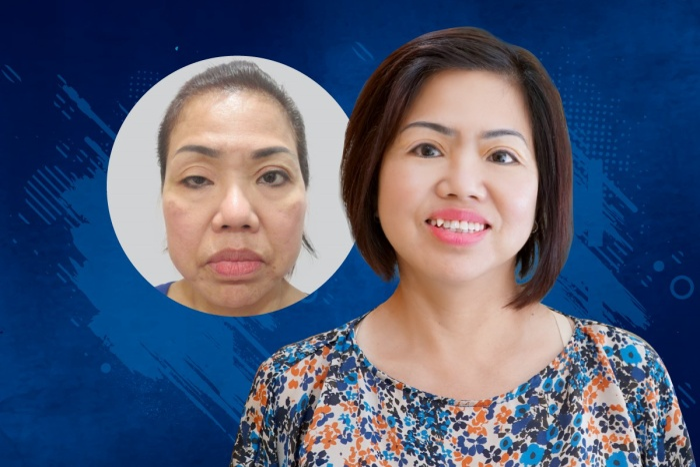 Nữ Việt kiều Mai oanh được cứu chữa thành công đôi mắt sụp mi tại JW.