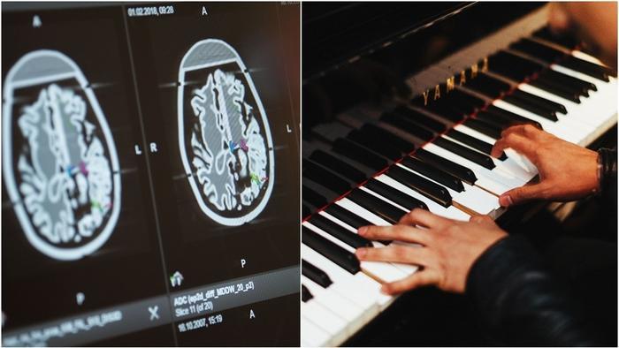 Nhạc sĩ vừa chơi piano trong lúc được các bác sĩ phẫu thuật não.
