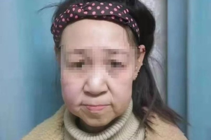 Xiao thường bị các bạn trêu chọc với khuôn mặt già nua.