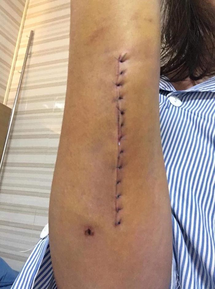 Những hình ảnh chụp lại vết thương được cho là bị chồng bạo hành dã man. Ảnh: Nguyễn Ly