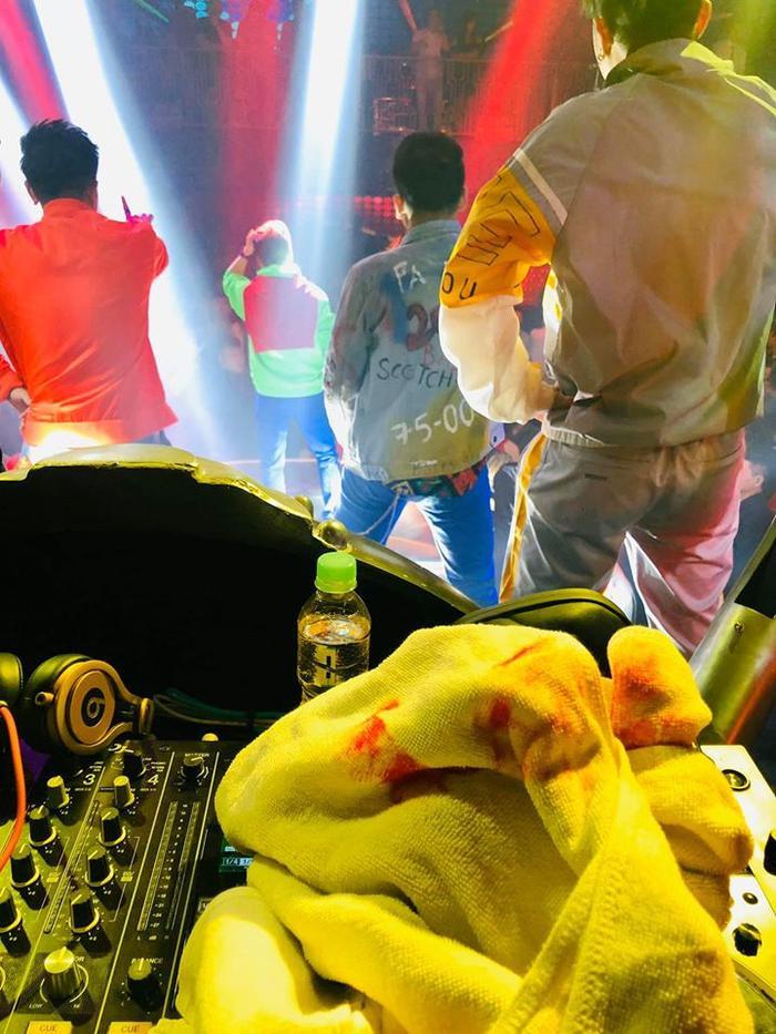 Vào viện băng bó vì tai nạn sân khấu, Đàm Vĩnh Hưng buồn bã: Sinh nghề tử nghiệp là có thật ảnh 2