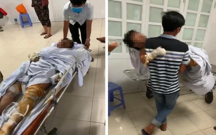 Khởi tố, bắt tạm giam nghi phạm phóng hỏa đốt nhà ở Phú Yên khiến 4 người trong gia đình bị bỏng nặng Ảnh 2