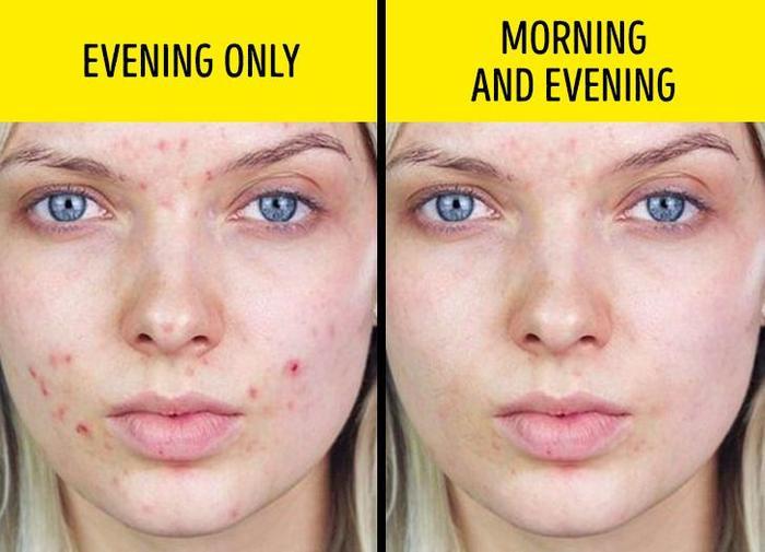 Da khô nẻ, nổi mụn vì dùng sai cách 8 sản phẩm làm đẹp này Ảnh 5