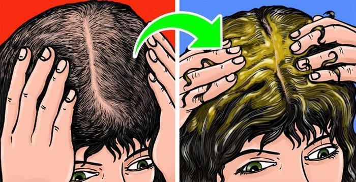 9 cách đơn giản trị hói đầu ngay tại nhà Ảnh 2
