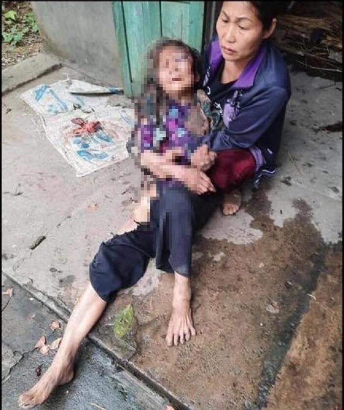 Bà cụ gần 90 tuổi bị nam thanh niên lẻn vào nhà đánh, châm lửa thiêu sống cướp hơn 21 triệu đồng: Nạn nhân đang hoảng loạn Ảnh 1