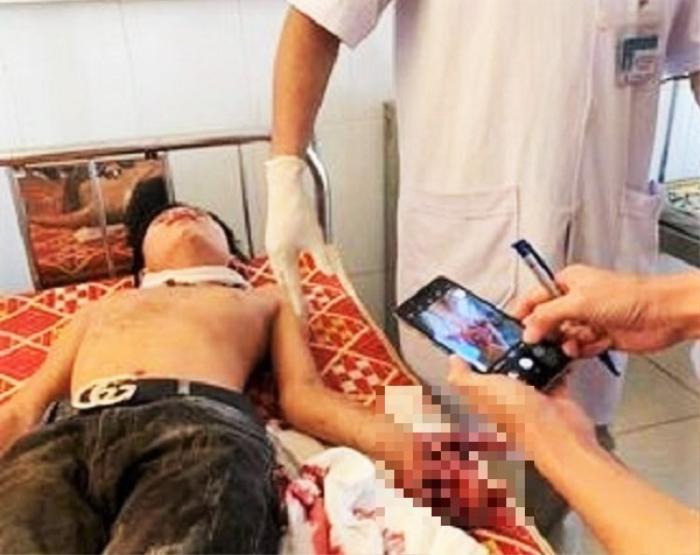 Đang học bài, laptop bất ngờ phát nổ khiến 3 học sinh nhập viện cấp cứu Ảnh 1