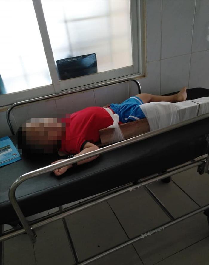 Bé trai 4 tuổi bị gãy chân ở lớp, cô giáo nói do 'chân quấn vào bàn' khiến người mẹ bức xúc Ảnh 2