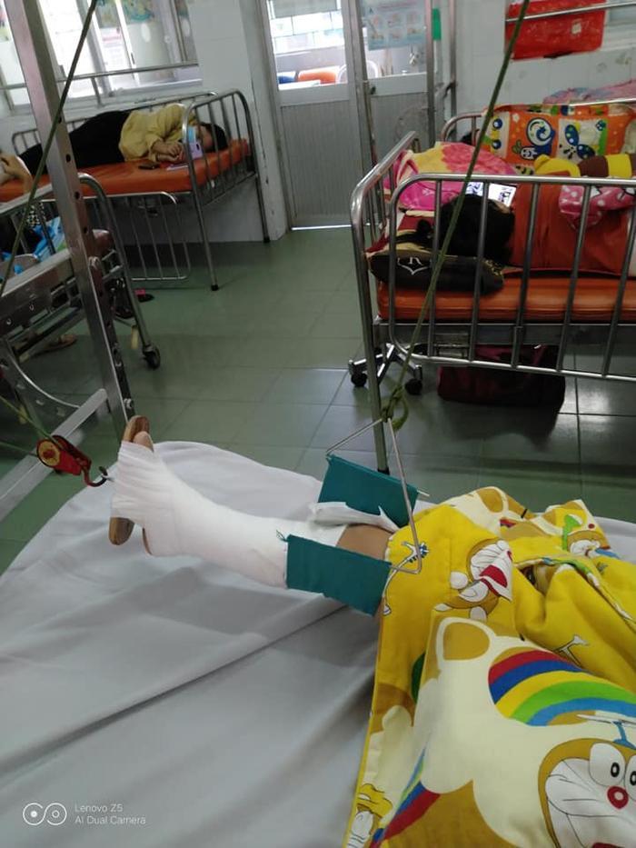 Bé trai 4 tuổi bị gãy chân ở lớp, cô giáo nói do 'chân quấn vào bàn' khiến người mẹ bức xúc Ảnh 4