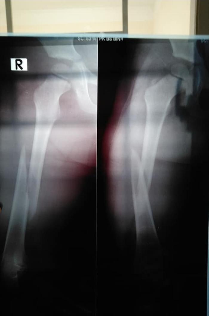 Bé trai 4 tuổi bị gãy chân ở lớp, cô giáo nói do 'chân quấn vào bàn' khiến người mẹ bức xúc Ảnh 3