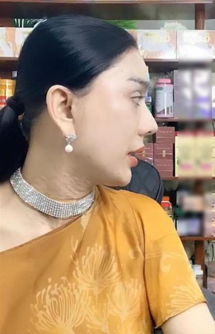 Lâm Khánh Chi lộ làn da cổ sần sùi nổi đầy hạt khi livestream Ảnh 3