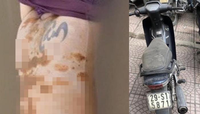 Công an truy tìm tung tích nam giới tử vong trên sông Hồng có hình xăm chữ 'Tâm' Ảnh 1