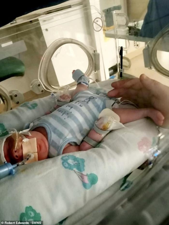 Em bé sinh non 15 tuần, nặng chưa tới 1kg sống sót thần kỳ dù mắc Covid-19, nhiễm trùng huyết và E.coli