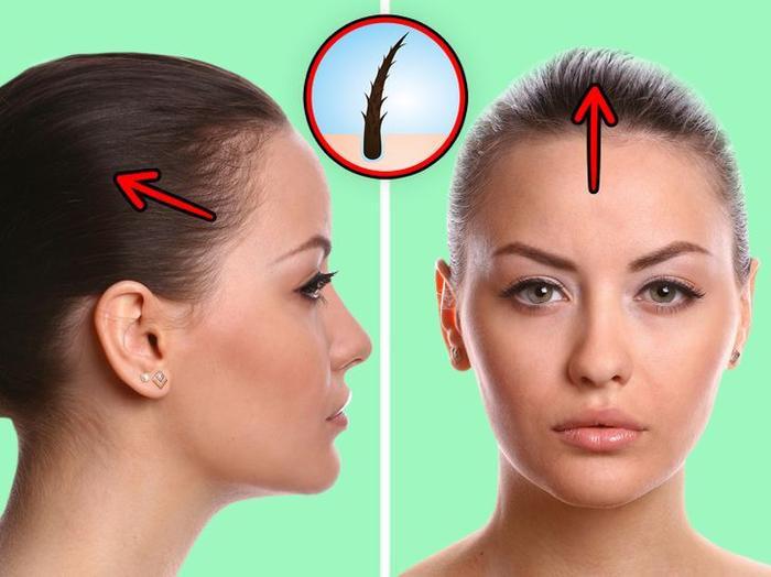 Tác hại khôn lường khi bạn buộc tóc đuôi ngựa thường xuyên Ảnh 2