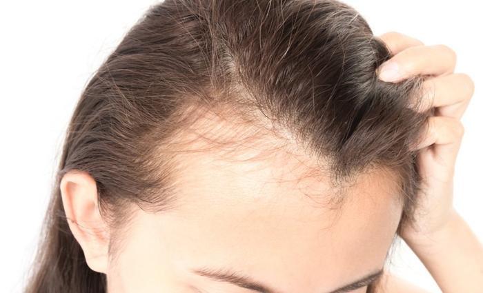 Tác hại khôn lường khi bạn buộc tóc đuôi ngựa thường xuyên Ảnh 7