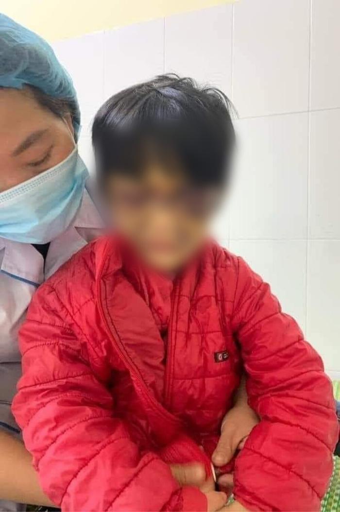 Khởi tố người mẹ nhốt con gái 6 tuổi vào phòng, đánh đập dã man vì con thường xuyên đi vệ sinh không bảo Ảnh 1