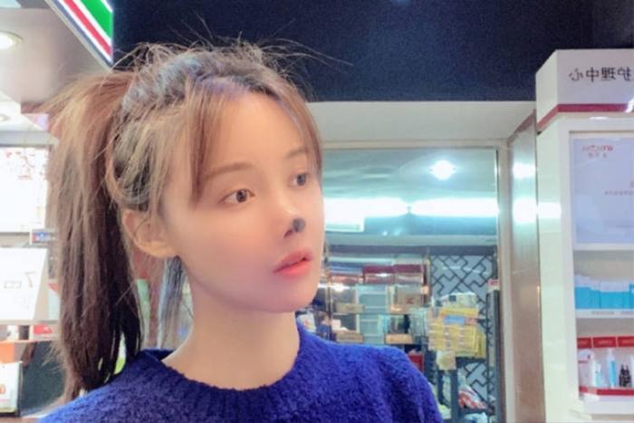 Nữ diễn viên Trung Quốc hoại tử mũi vì phẫu thuật thẩm mỹ khiến cư dân mạng sợ hãi Ảnh 4