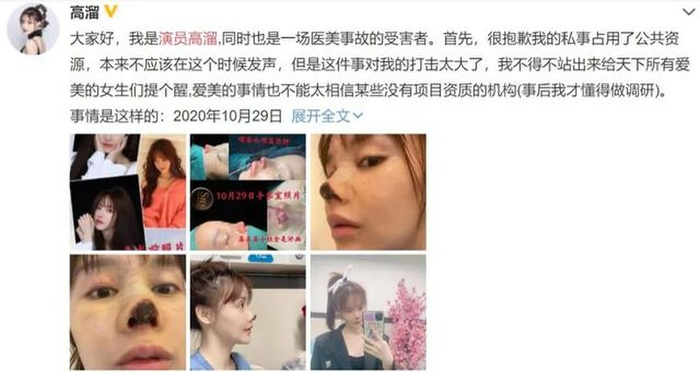 Nữ diễn viên Trung Quốc hoại tử mũi vì phẫu thuật thẩm mỹ khiến cư dân mạng sợ hãi Ảnh 1