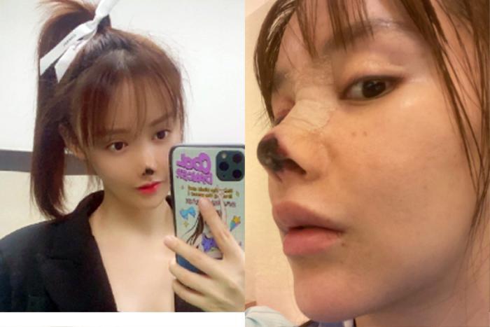 Nữ diễn viên Trung Quốc hoại tử mũi vì phẫu thuật thẩm mỹ khiến cư dân mạng sợ hãi Ảnh 3