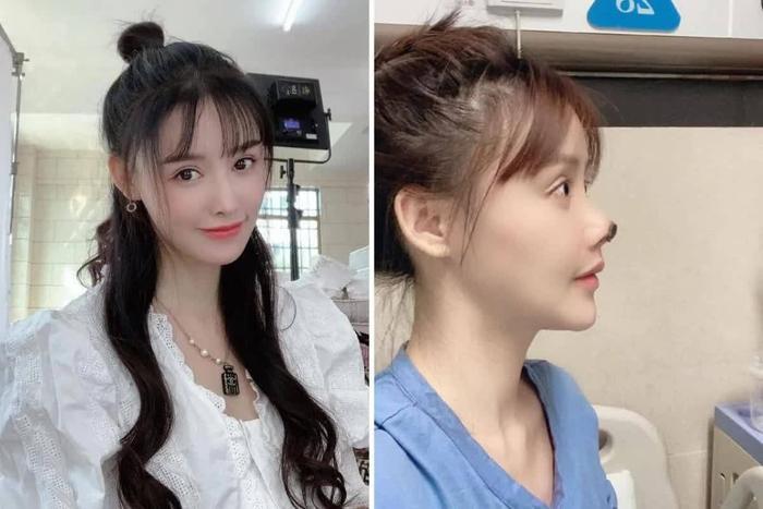 Nữ diễn viên Trung Quốc hoại tử mũi vì phẫu thuật thẩm mỹ khiến cư dân mạng sợ hãi Ảnh 2