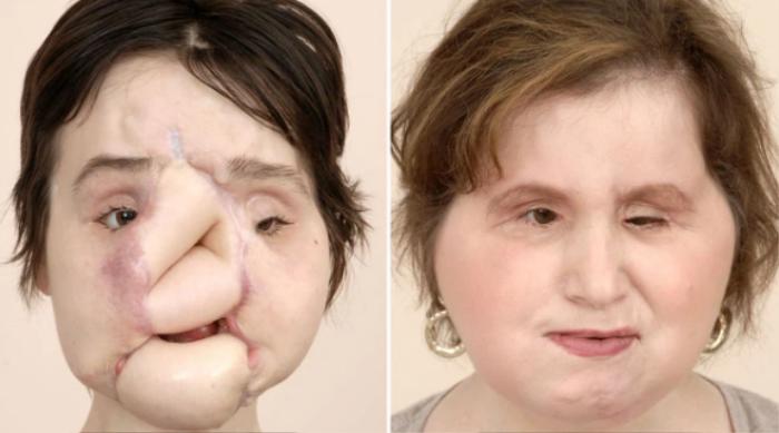 Nổ súng vào mặt tự tử nhưng không chết, cô gái xinh đẹp hỏng cả gương mặt và màn 'lột xác' sau 6 năm Ảnh 4