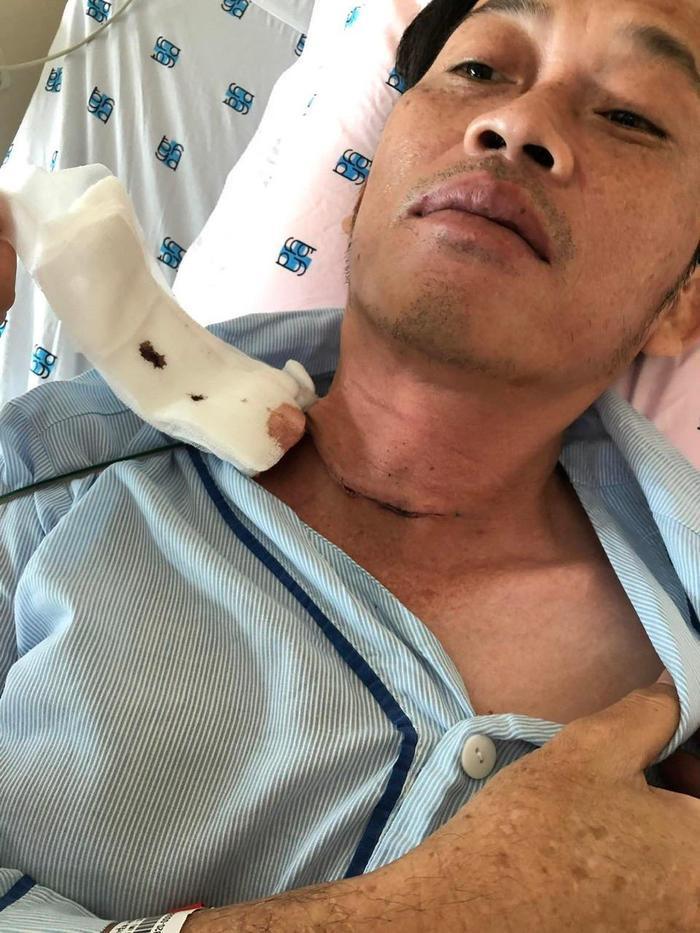 Người thân NSƯT Hoài Linh xác nhận mắc ung thư tuyến giáp, đã phẫu thuật thành công Ảnh 1