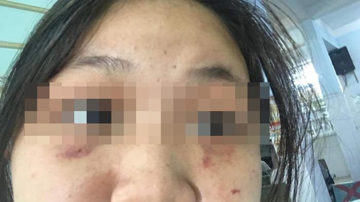 Người nhà nữ sinh bị đánh hội đồng ở Đồng Nai: 'Con bé hoảng loạn lắm, đang phải điều trị thuốc an thần Ảnh 2