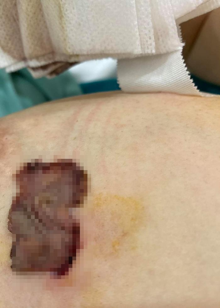 Hòa Minzy phải mổ ngực sau sinh con: Nguyên nhân thực sự nhiều người rất hay gặp phải Ảnh 3