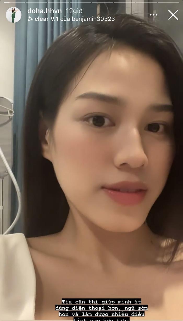 Hoa hậu Đỗ Thị Hà tiếp tục 'sửa nhẹ' một điểm trên gương mặt Ảnh 1