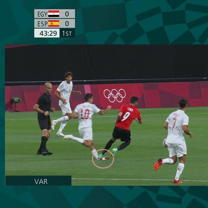 Cầu thủ Tây Ban Nha chấn thương kinh hoàng, cổ chân bị bẻ gập Ảnh 1
