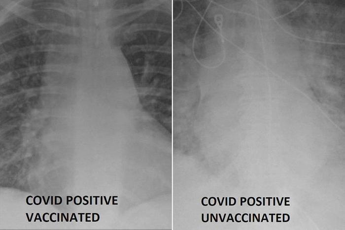 Muốn biết hiệu quả của các loại vaccine ra sao, nhìn phổi của bệnh nhân Covid-19 là biết Ảnh 2