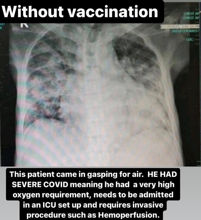 Muốn biết hiệu quả của các loại vaccine ra sao, nhìn phổi của bệnh nhân Covid-19 là biết Ảnh 4