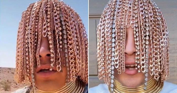 Nam rapper 'chơi trội' cấy tóc bằng… dây chuyền vàng, răng nạm kim cương