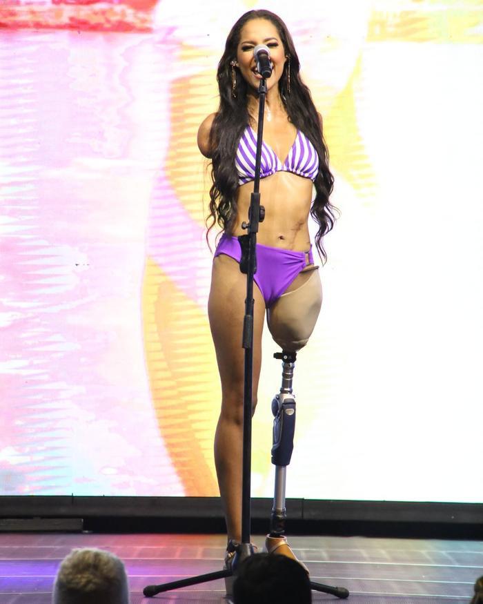 Câu chuyện cảm động về mỹ nữ khuyết tật và hành trình gian nan đến với Miss Universe Ảnh 1