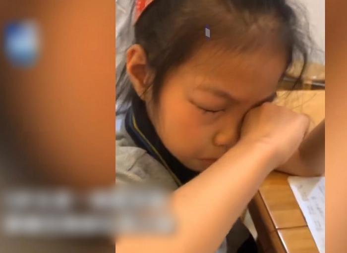 Bé gái bị dị ứng với bài tập Toán, cứ ngồi vào bàn là ngứa ngáy phát khóc, mắt sưng húp lên Ảnh 1